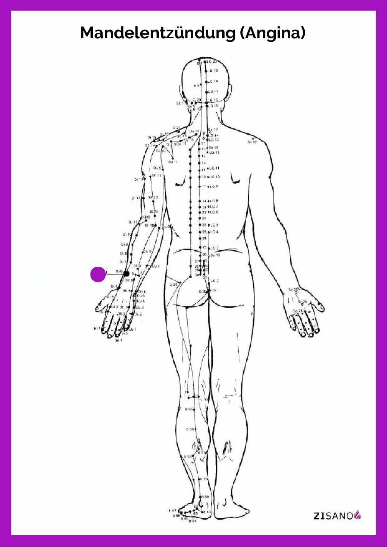 Meridiane - Mandelentzündung - Angina - Beschwerden