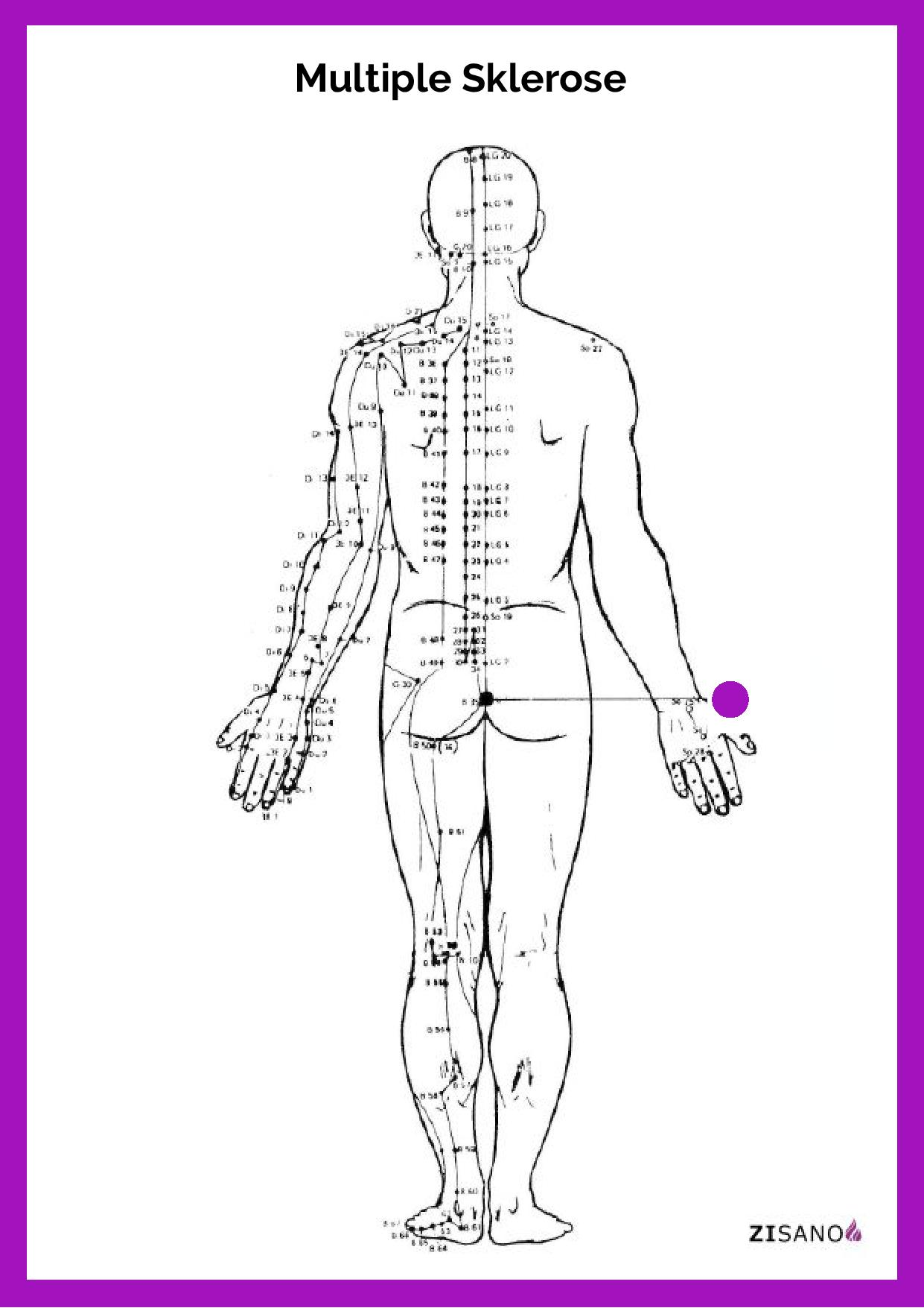 Meridiane - Multiple Sklerose - Beschwerden