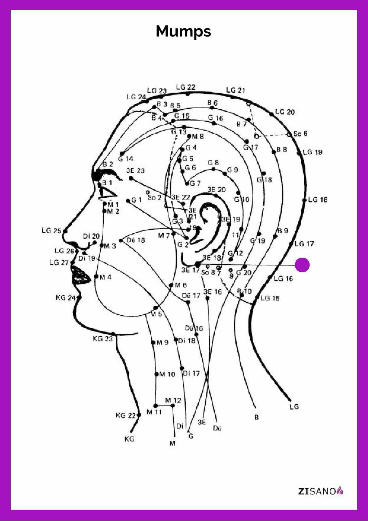 Meridiane - Mumps - Beschwerden