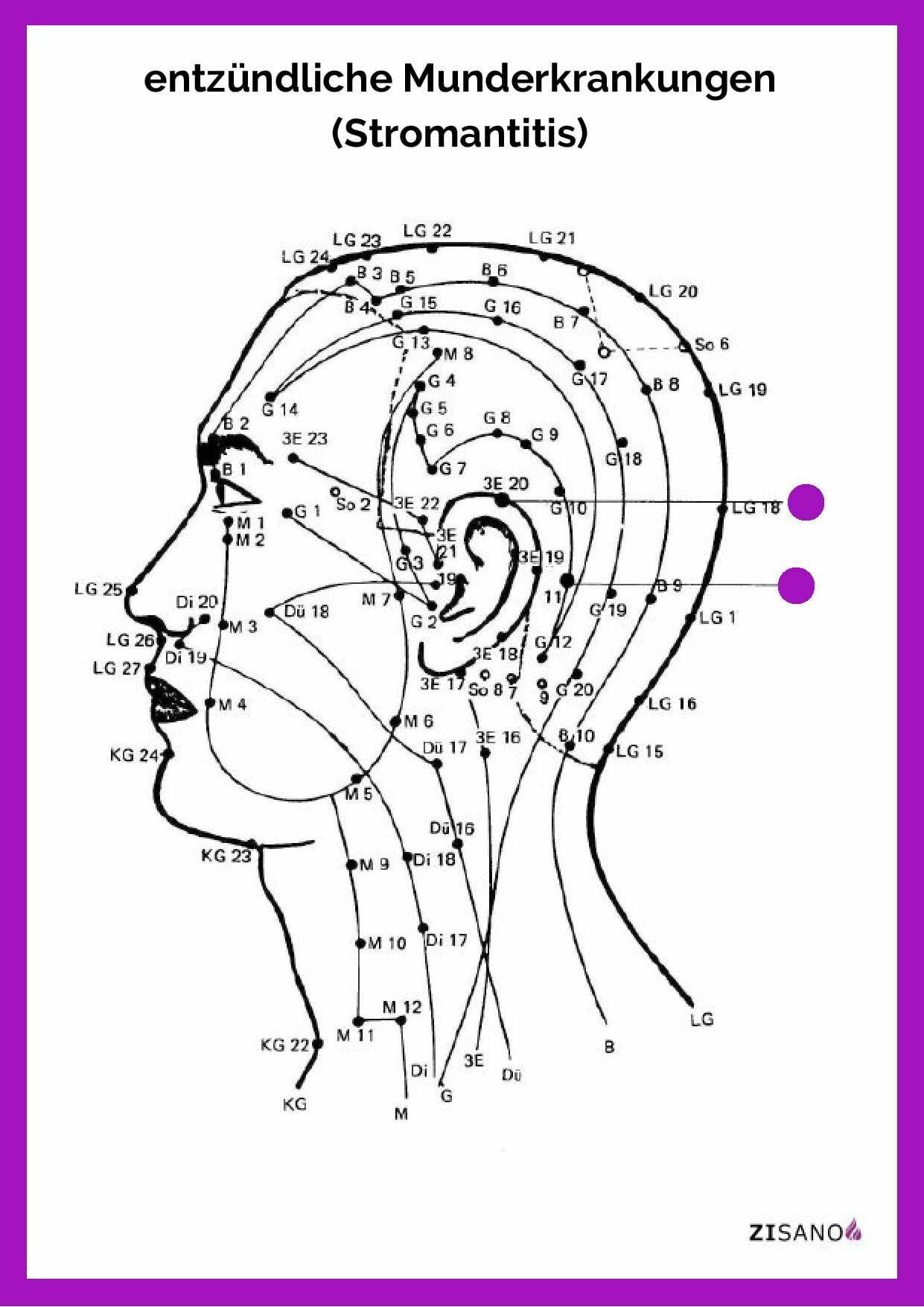 Meridiane - Munderkrankungen entzündlich - Stromantitis - Beschwerden