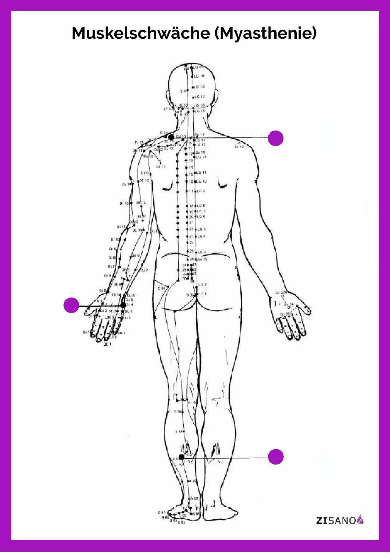Meridiane - Muskelschwäche - Myasthenie - Beschwerden