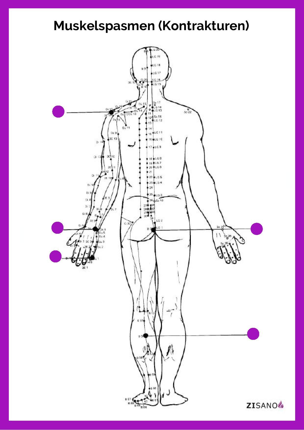 Meridiane - Muskelspasmen - Kontrakturen - Beschwerden