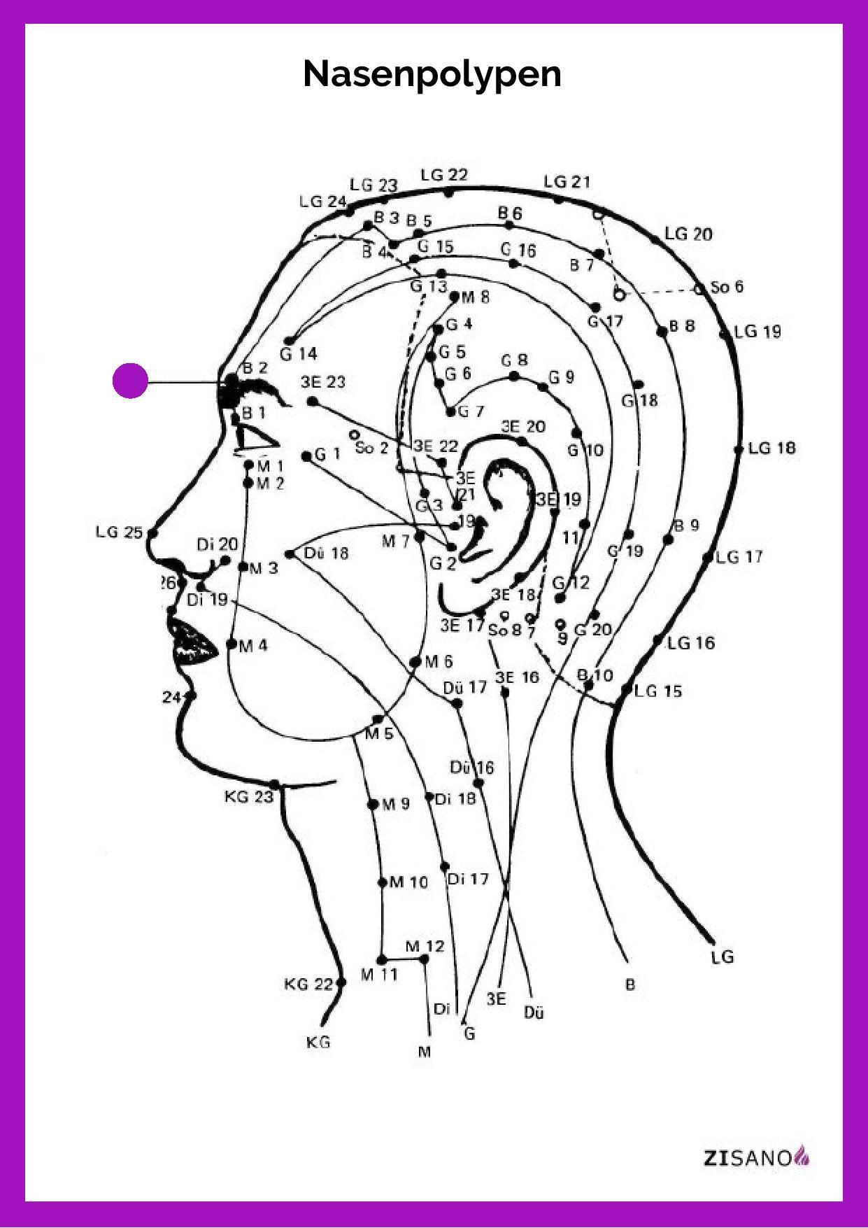 Meridiane - Nasenpolypen - Beschwerden