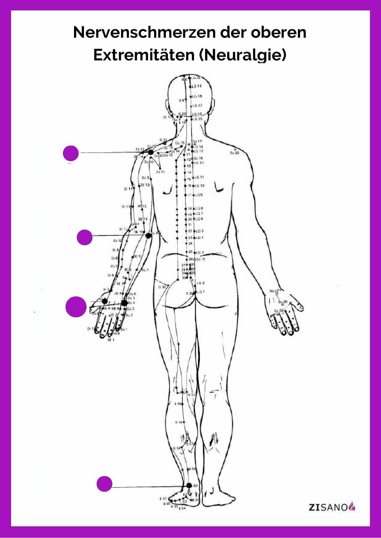 Meridiane - Nervenschmerzen - obere Extremitäten - Neuralgie - Beschwerden