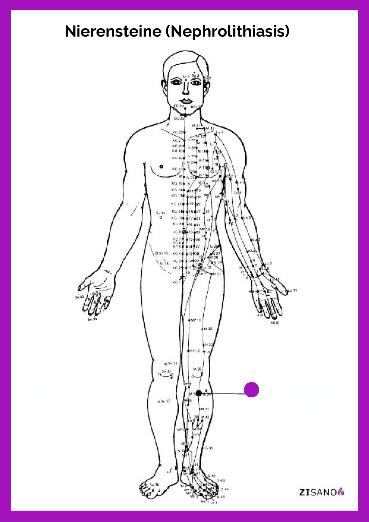 Meridiane - Nierensteine - Nephrolithiasis - Beschwerden